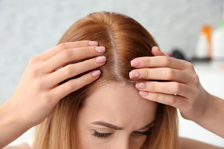 11 Ways How To Stop Hair Loss in Women